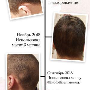 Результат использования средств Biofollica.